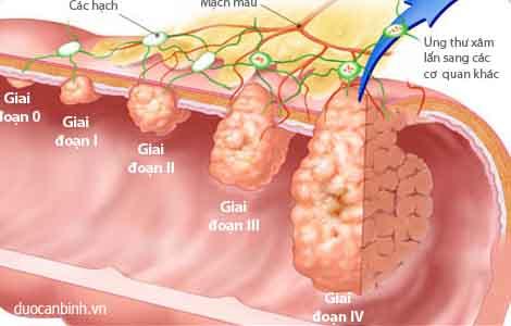 Các dấu hiệu cảnh báo bệnh ung thư trực tràng