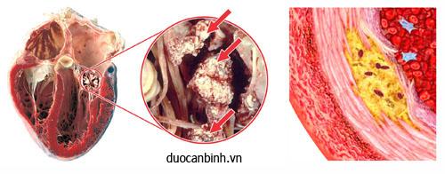 Vi tinh thể muối urat lắng đọng tại van 2 lá, cơ tim bệnh nhân gút