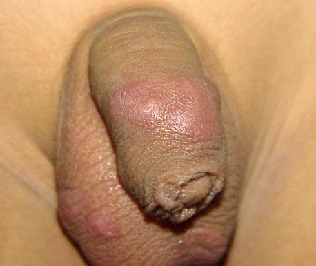 ghẻ ở bộ phận sinh dục