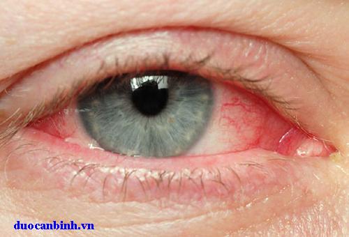Bạn biết gì về xốn mắt, đỏ mắt