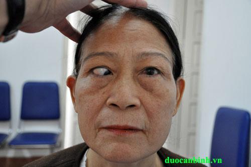 Bệnh mắt lác