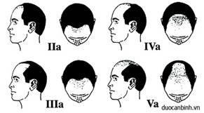 bệnh rụng tóc hói đầu