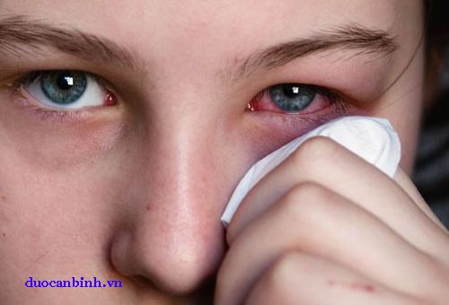Nguyên nhân gây ra đau mắt đỏ