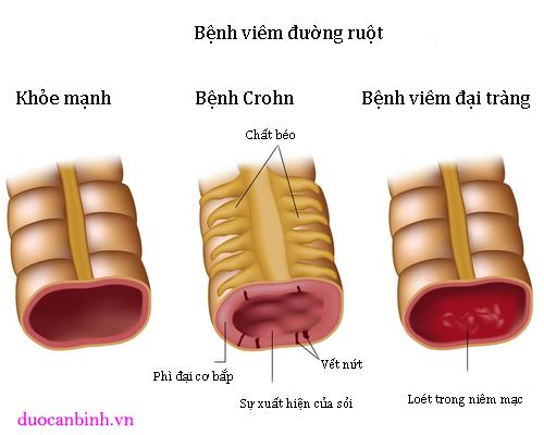 Bệnh viêm loét đại tràng