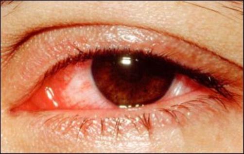 Mắt khô, đỏ