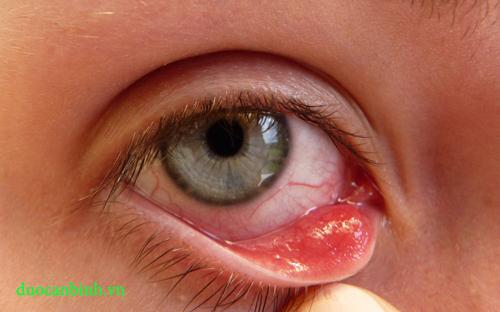 Lẹo mắt khiến mắt đỏ và cộm