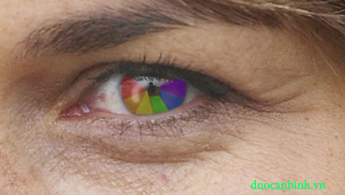Hiện tượng mù màu