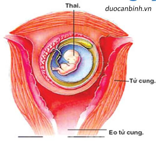 Sảy thai do hở eo tử cung