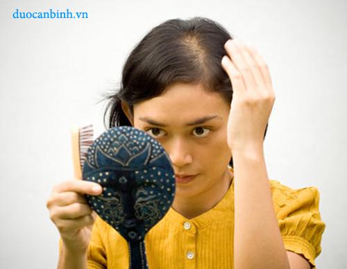 Bệnh rụng tóc ở nữ giới