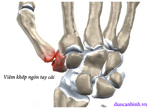 viêm khớp ngón tay cái