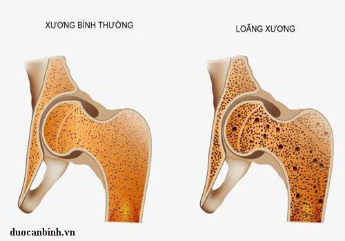 benh-loang-xuong-11