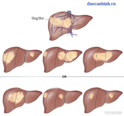 Các vị trí ung thư gan