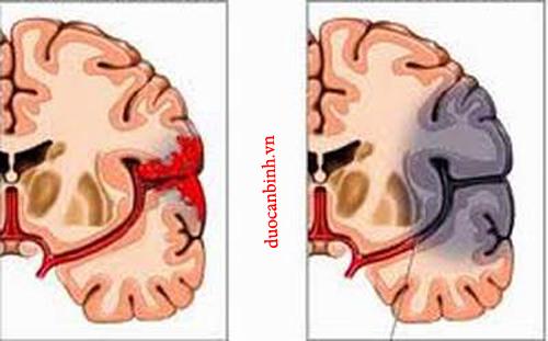 Tai biến mạch máu não là biến chứng của huyết áp thấp
