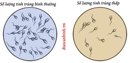 Tinh trùng yếu và ít