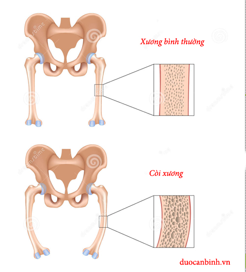 Còi xương ở trẻ