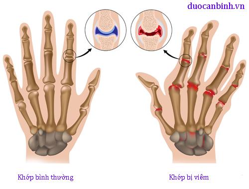 viêm khớp bàn tay