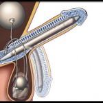 erectile-dysfunction-s20-penile-implant