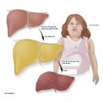 graphic-fatty-liver