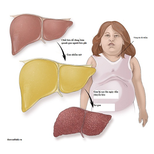 graphic-fatty-liver