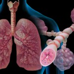 webmd_rm_photo_of_asthma_illustration