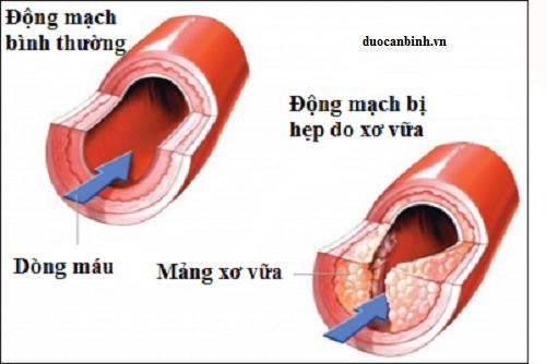 xo-vua-dong-mach